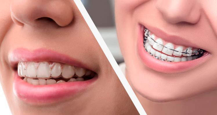 Invisalign - Brackets Madrid